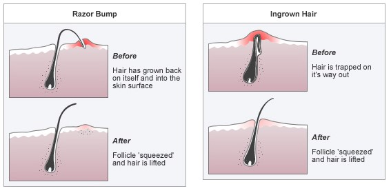 Ingrown-hair-and-other-shave-problems